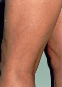 Sclerotherapy-after-370422