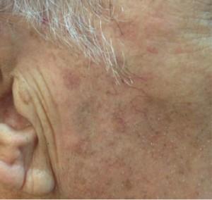 CHEEK AGE SPOT POST treatment